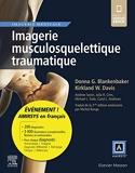Imagerie musculosquelettique traumatique