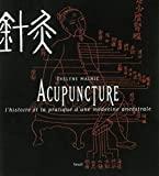 Acupuncture - L'histoire et la pratique d'une médecine ancestrale